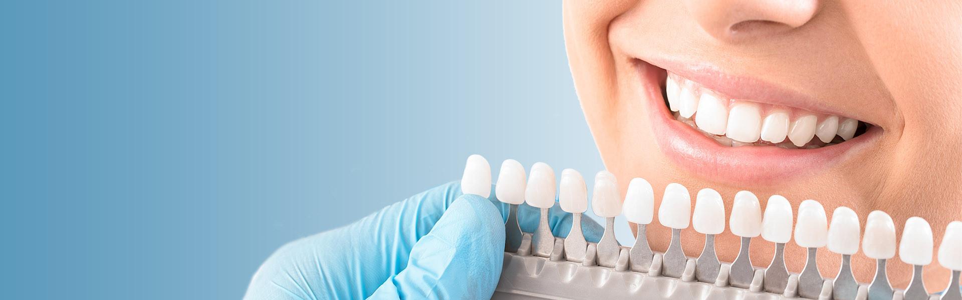 Идеальная улыбка с Zoom 4 - 22 000 — Стоматология Митино ДИНАСТИЯ-М